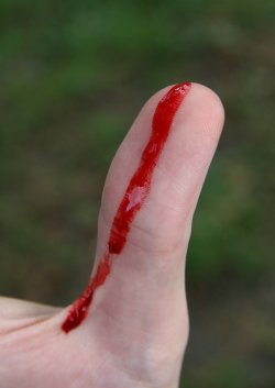 Bleeding_wound_on_thumb